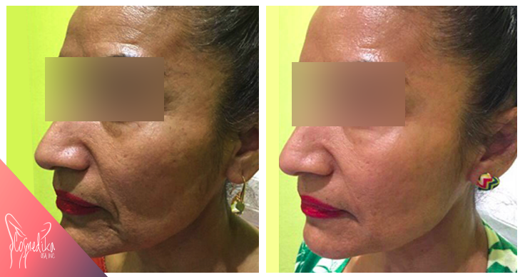 before-after-hyaluronic2