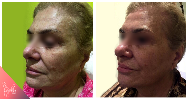 before-after-hyaluronic3