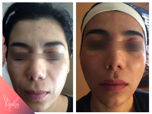 before-after-vit-radiant1